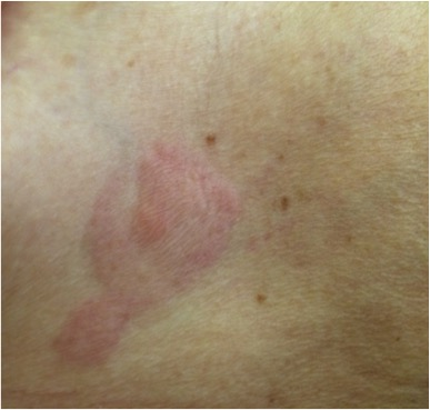 A First Sign Not To Be Missed Cutaneous Metastasis From Breast Cancer