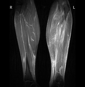 View Of Eosinophilic Fasciitis An Atypical Presentation Of A Rare