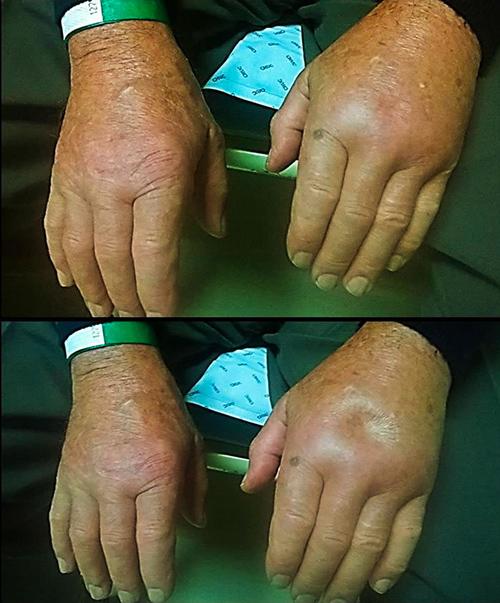 Remitting Seronegative Symmetrical Synovitis with Pitting Oedema ...